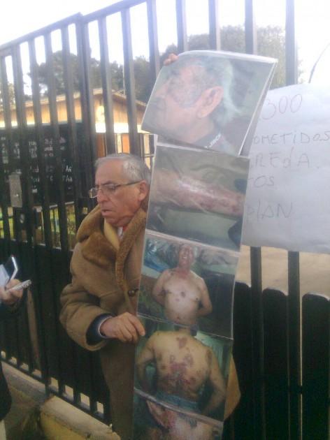Ex trabajadores de Enami afectados por contaminación | Francisco Ovalle