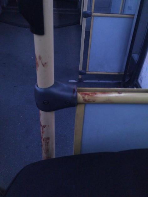 ¿Qué pasa con la higiene en los buses? | Claudio Jara
