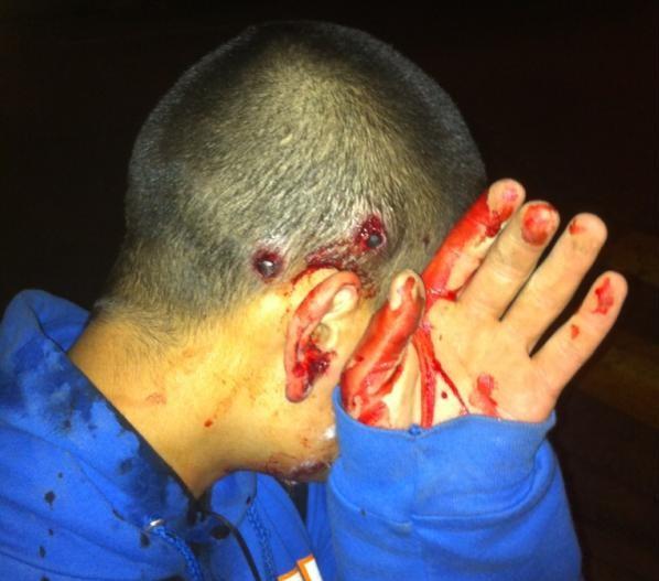 Joven herido con perdigones | Julio López (@juliolopezaysen)