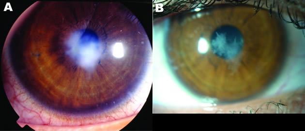 Ojo de la joven antes y después de la infección | PMC
