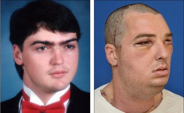 Richard antes del accidente | Richard en marzo tras la operación