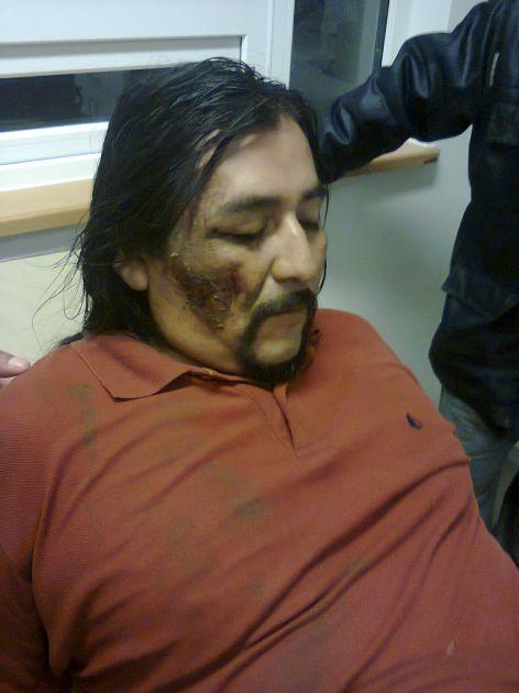 Imágenes de supuesta agresión enviadas por Jorge Huenchullán