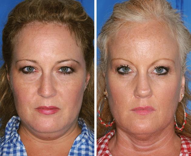 La mujer de la derecha es fumadora y su hermana no