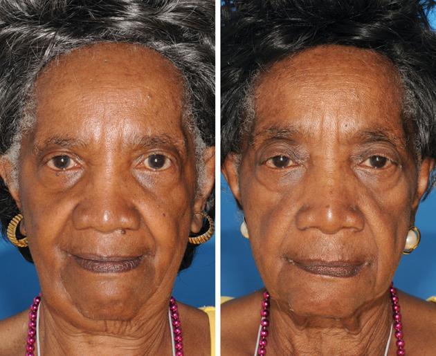 La mujer de la derecha fumó 29 años y su hermana no