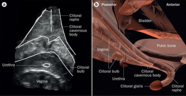 El CUV en la zona del cuerpo femenino | Nature