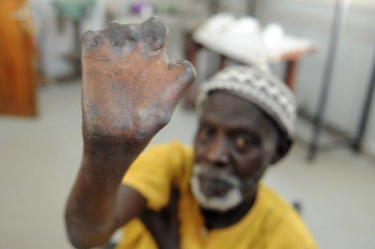 Seyllou Diallo | AFP