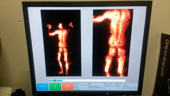 Imágenes del escaneo