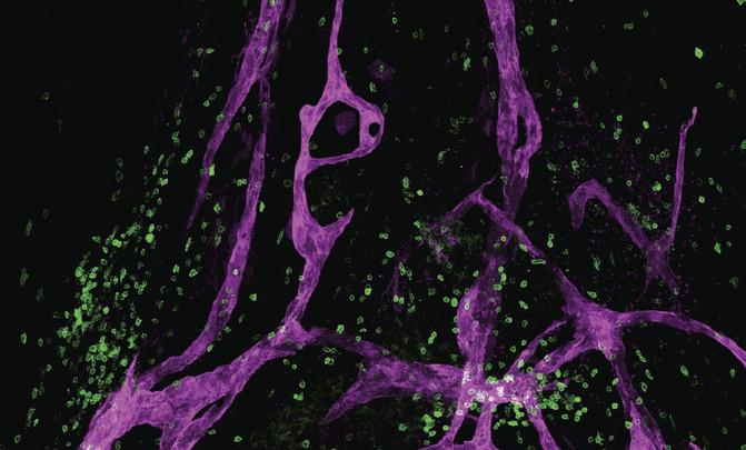 Para sorpresa de los científicos, se ha descubierto que el sistema linfático también actúa en el cerebro. / Jonathan Kipnis and Antoine Louveau