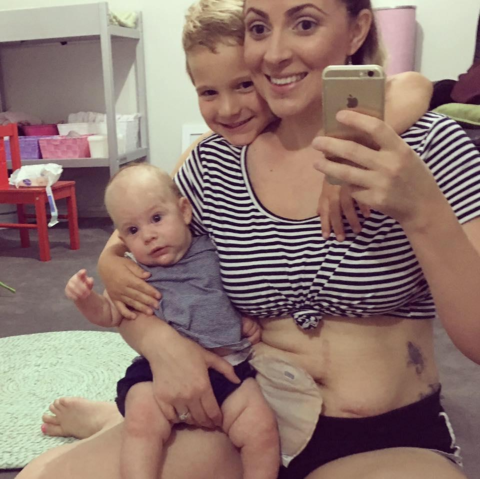 Una joven madre con el mal de Crohn y sus dos hijos | Bag Lady Mama | Facebook