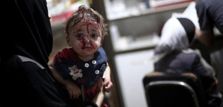 Bebé herido por la guerra en Siria.