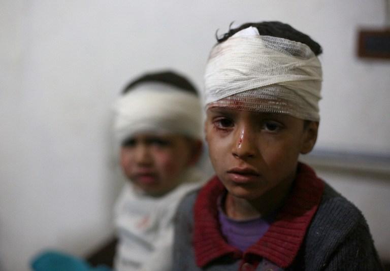 Niño herido por la guerra en Siria.