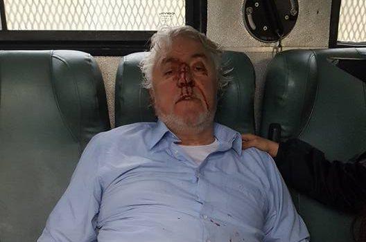 Presidente de Federación De Pescadores Artesanales de Corral resultó herido tras manifestación en Niebla
