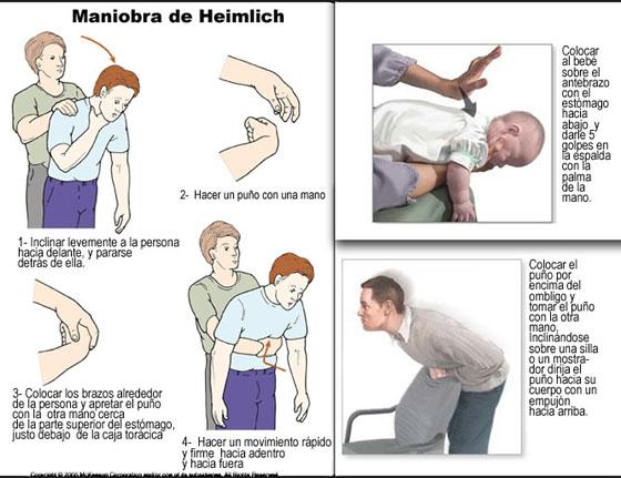Maniobra de Heimlich sirve para evitar atragantamiento con alimentos