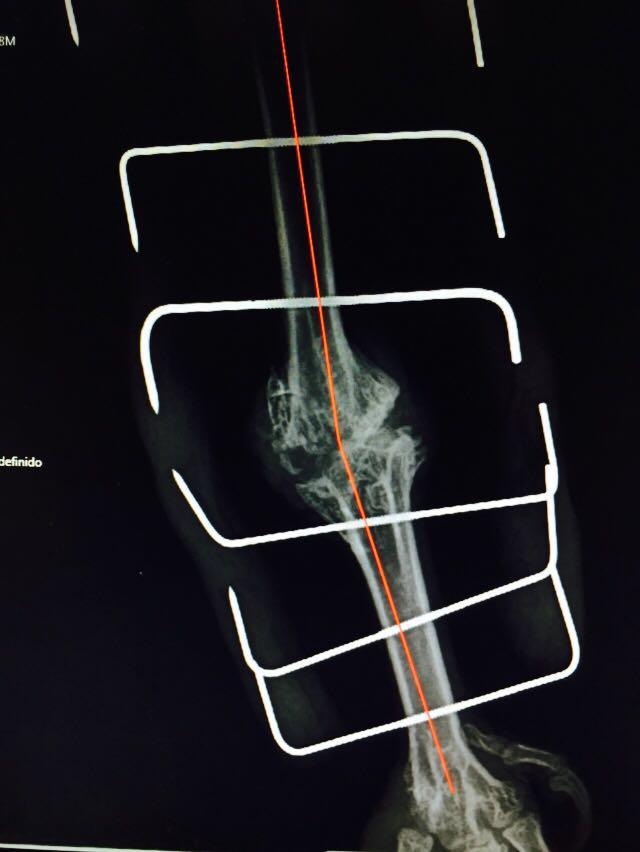 Radiografía tras cirugía