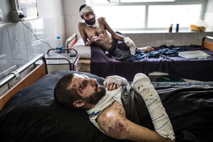 Pacientes heridos en un accidente de autobús reciben tratamiento en la unidad de quemados del hospital de Boost, Lashkar Gah, Helmand, Afganistán. El autobús viajaba desde Kabul a Kandahar ©Kadir van Lohuizen/Noor