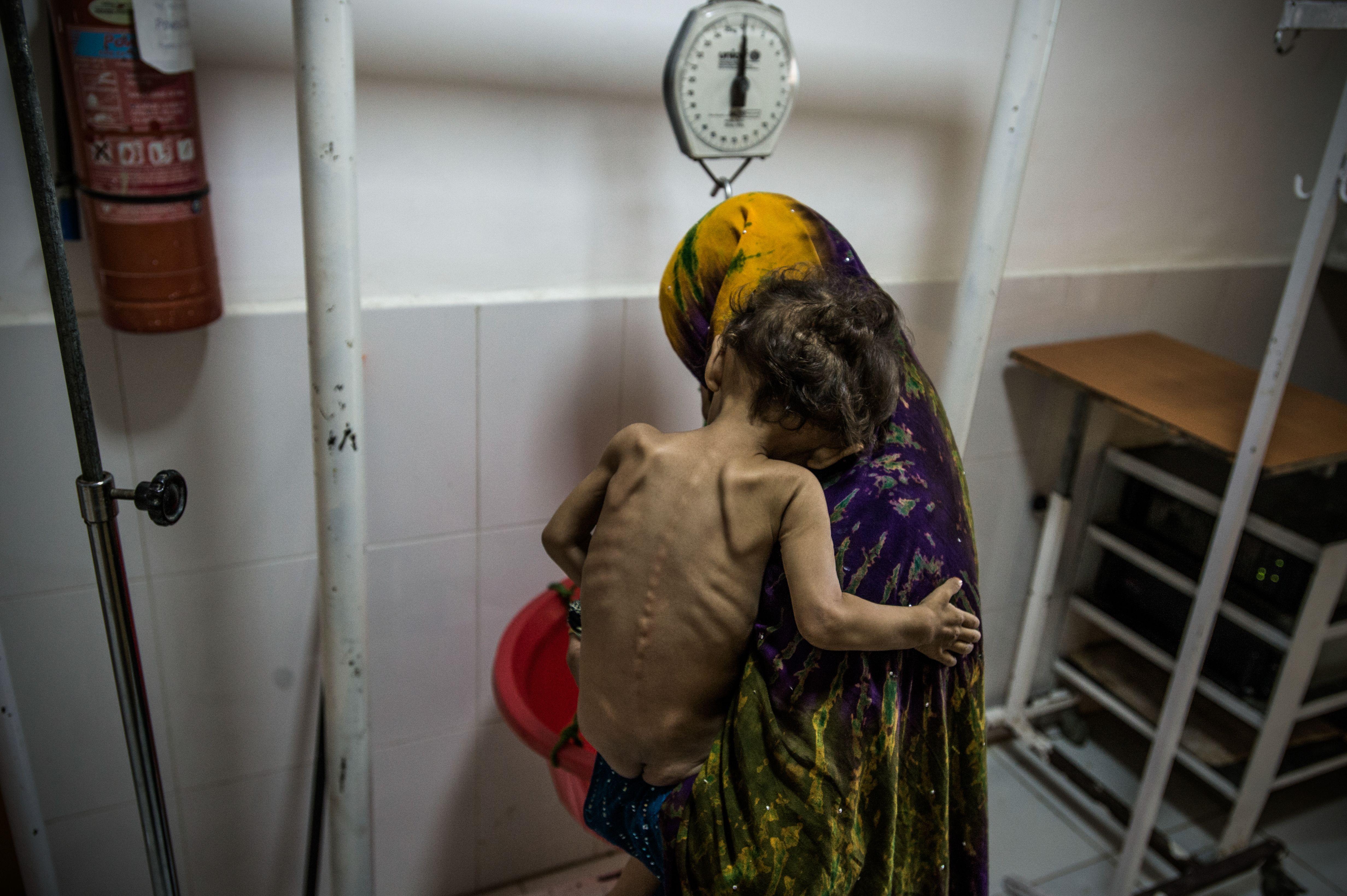 Un nina con desnutrición severa en el centro de nutrición terapéutica en el hospital de Boost, Lashkar Gah, Helmand, Afganistán (Foto: Kadir van Lohuizen/Noor)