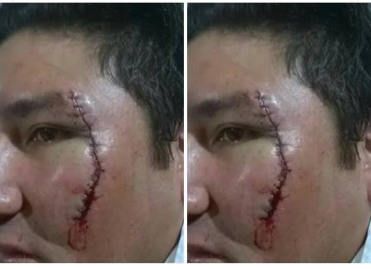 Herida cortante en rostro del hombre