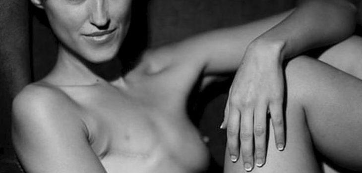 Malú Galeote, una modelo que sobrevivió al cáncer de mama con una mastectomía.