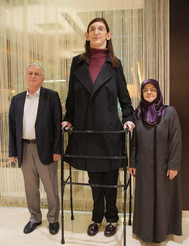 La adolescente más alta del mundo es tan grande que no puede caminar