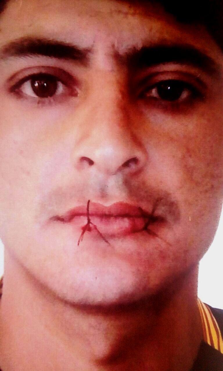 Reo se coce la boca e inicia huelga de hambre: No quiere cumplir condena de 10 años
