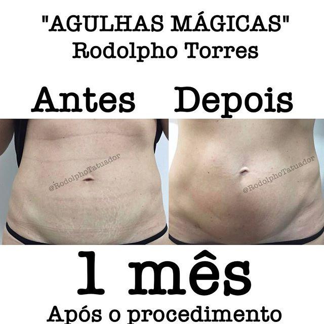 Rodolpho Torres