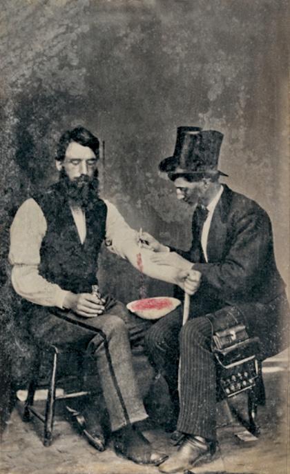 Médico realizando Bloodletting en 1860 (CC) Wikimedia Commons