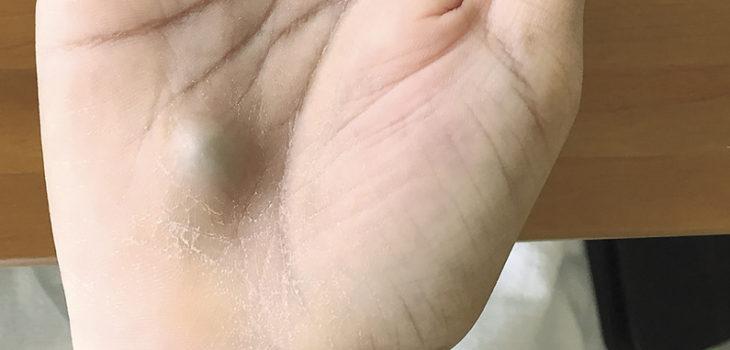 Joven canadiense descubre extraño bulto en su mano tras infección dental y casi muere
