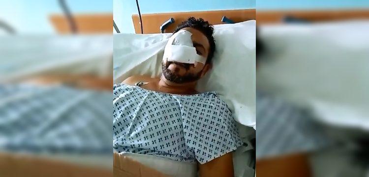 Denuncian que hombre perdió un ojo tras recibir lacrimógena en la cara en Santiago