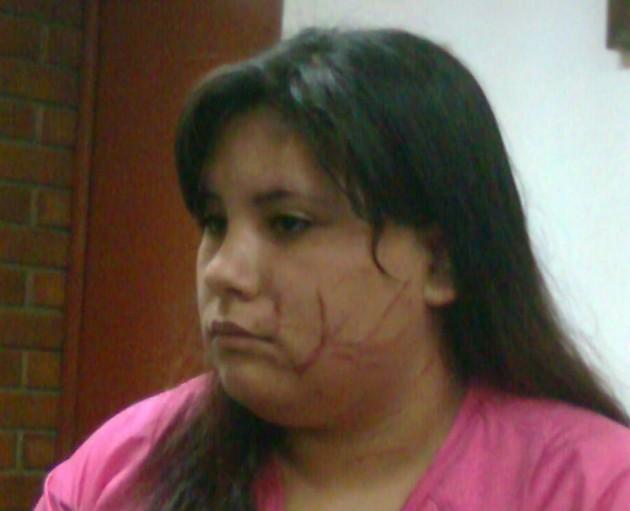 Estudiante agredida   Rodrigo Pino