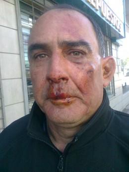 Hombre agredido