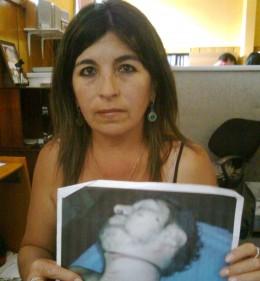 Madre de joven fallecido con foto que muestra las lesiones