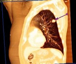 Estudio tomográfico mostrando un cáncer pulmonar   Wikipedia