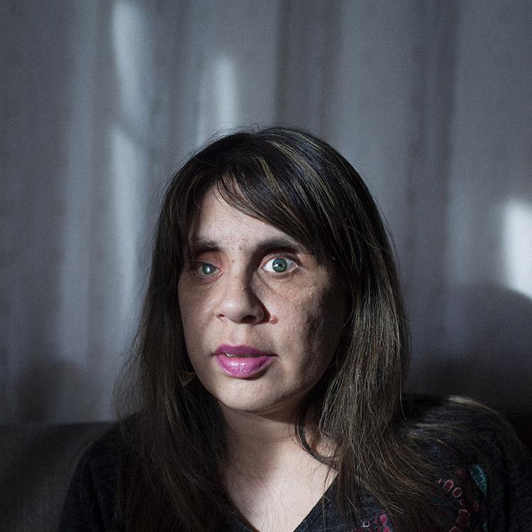 Carola Barría (35) fue atacada por su ex pareja, quien en un arrebato de celos le sacó sus ojos en presencia de su hijo de cinco meses. Estuvo a punto de morir desangrada en la calle, pero un transeúnte la encontró refugiada en una zanja. Hoy, Carola tiene prótesis oculares y ha aprendido a desenvolverse en la ceguera. A finales del 2013 se tituló de educadora de párvulos y actualmente se encuentra trabajando y cuidando a sus dos hijos. Punta Arenas, Chile 11 de Octubre del 2016