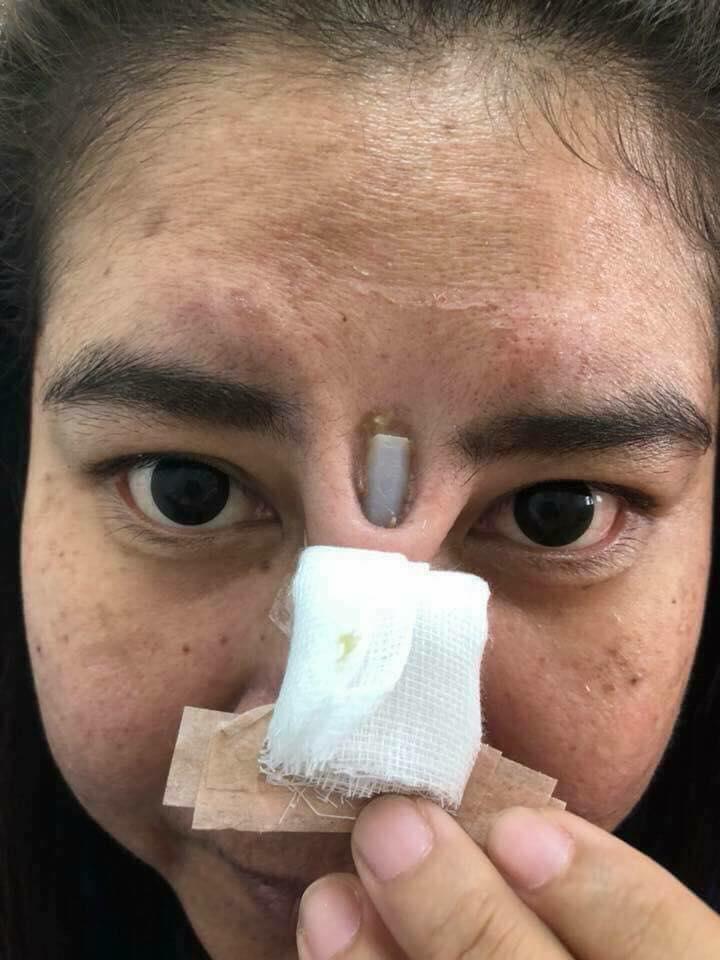 Joven tailandesa | Facebook