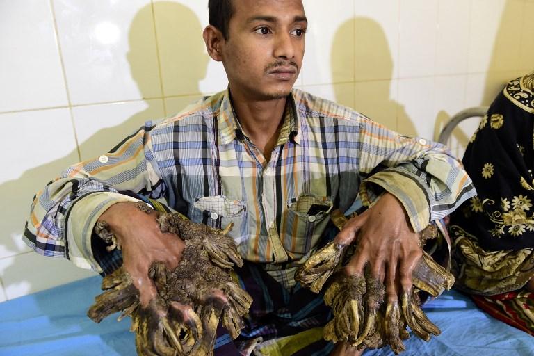 Abul en 2016 antes de las cirugías | Munir Uz Zaman | AFP
