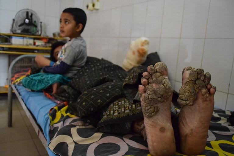 Abul en 2018 |  Sam Jahan | AFP