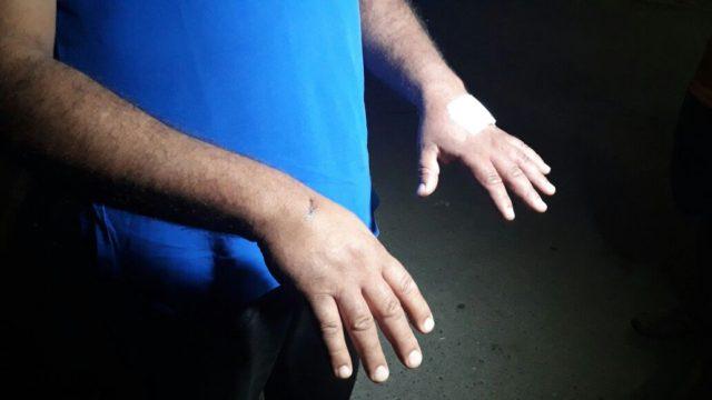 Lesiones de uno de los involucrados | Carlos Agurto | RBB