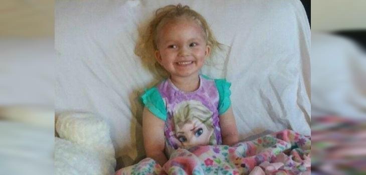Las terribles consecuencias que vivió niña de 3 años por usar maquillaje infantil