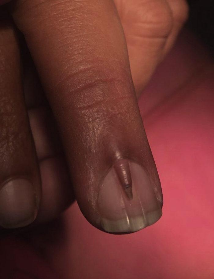 Hombre sufre extraña condición que provoca que crezca una uña dentro ...