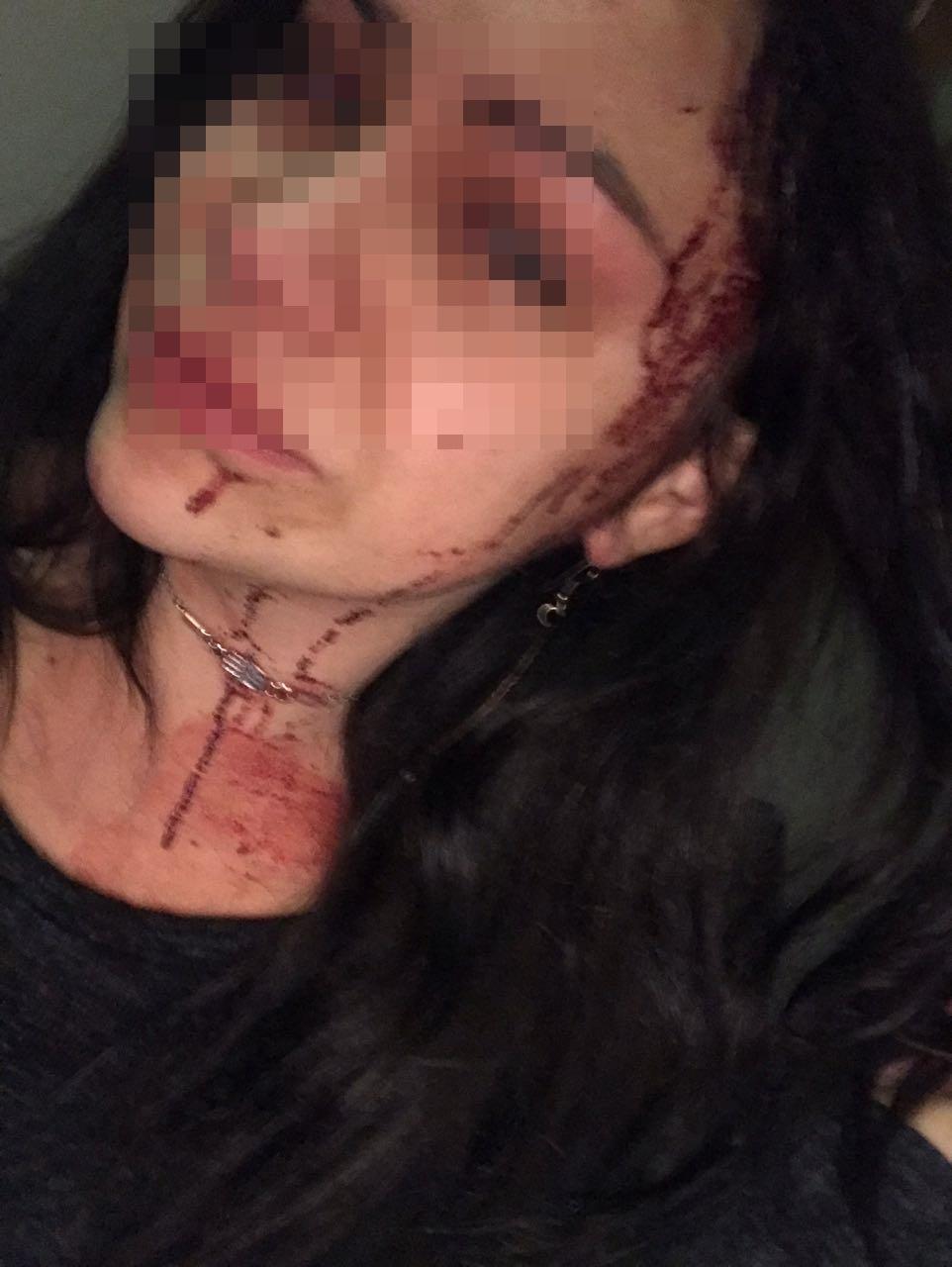 foto-de-mujer-agredida