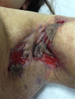 Axilas de paciente mujer en etapa III, que es la más severa, con tractos fistulosos múltiples lesiones ulceradas y cicatrices hipertróficas, compromiso simétrico de ambas axilas