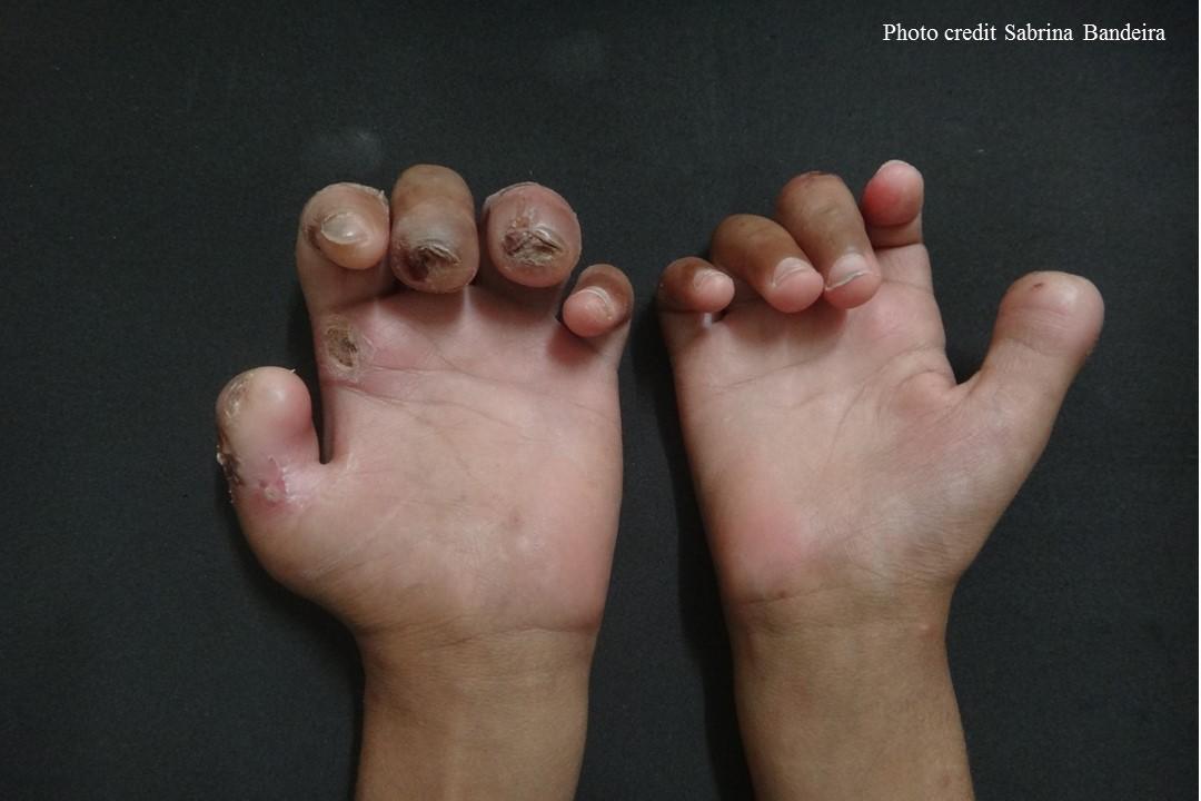 Daño a los nervios y pérdida ósea en un niño de 12 años debido a la lepra. Imagen de Sabrina Bandeira