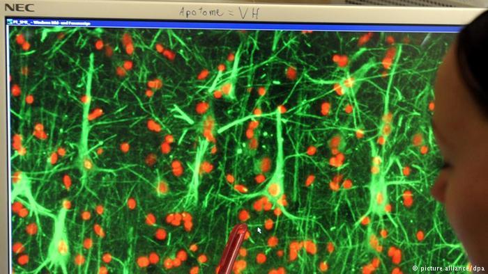 DW | Neuronas mueren por Alzheimer