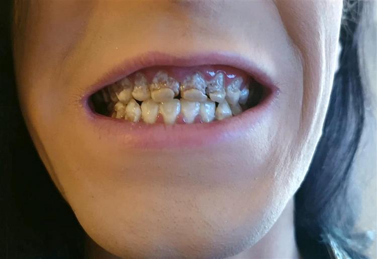 Su dentadura quedó completamente podrida | Kent Online