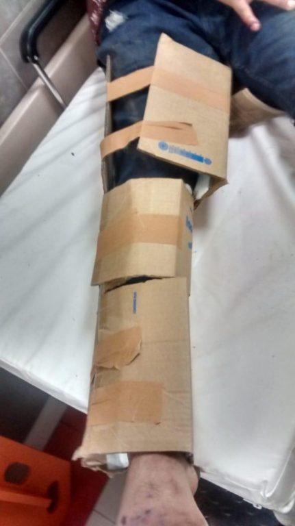 Pierna inmovilizada con cartón