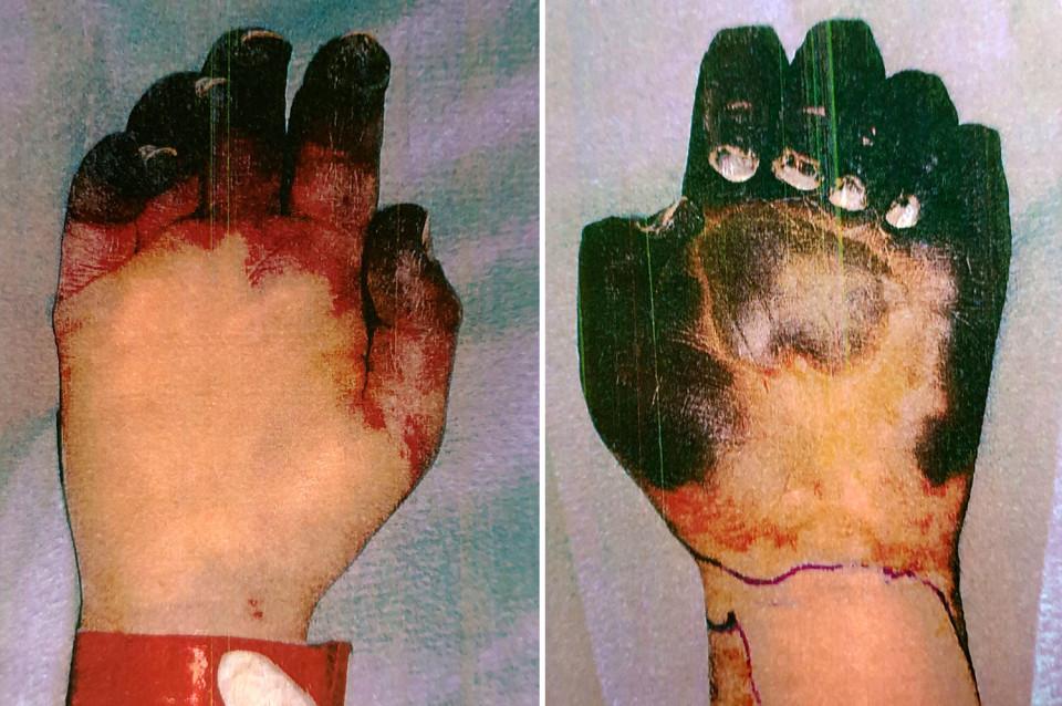 Sepsis que se puede desarrollar en una mano | Imagen referencial