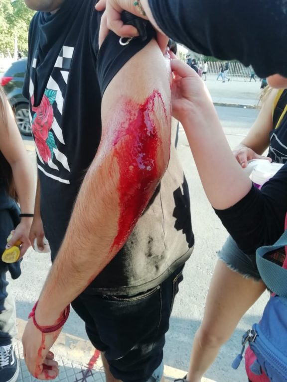 Lesiones por perdigones en Santiago