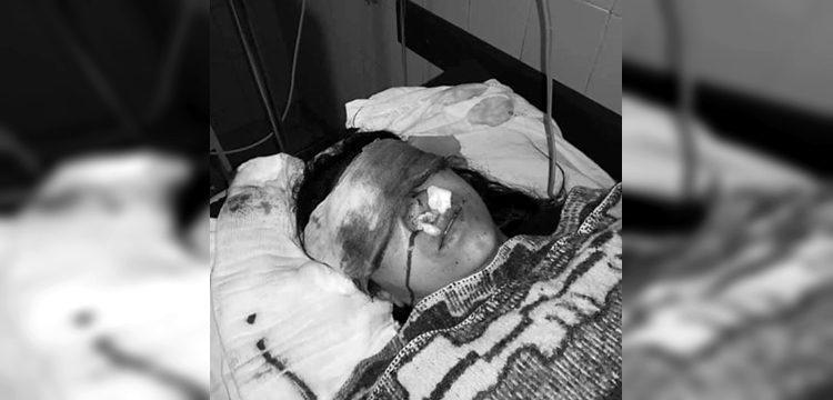 [Imagen: mujer-que-fue-impactada-por-lacrimgena-q...50x360.jpg]