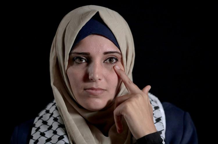 Jacqueline Shahada mostrando el ojo en el que perdió la visión | AFP