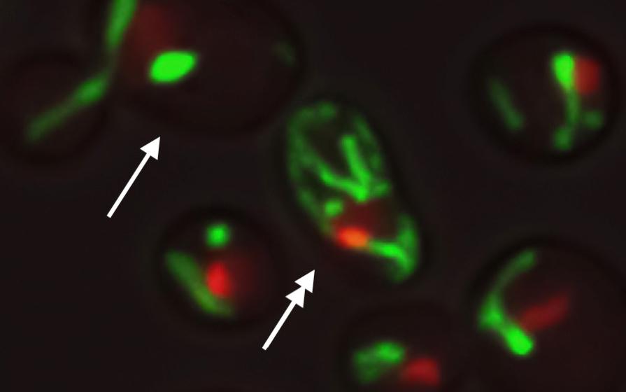 Células de levadura con el mismo ADN muestran diferentes estructuras de mitocondrias (verde) y el nucleolo (rojo)